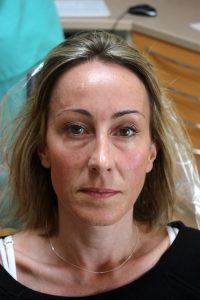 Before Mid face augmentation with Juvederm Voluma