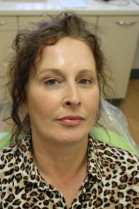 After Botox for Frown line and Forehead treatment