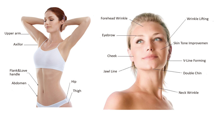 HIFU treatment areas