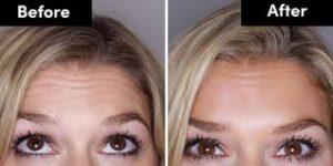 Botox Foreheadlines
